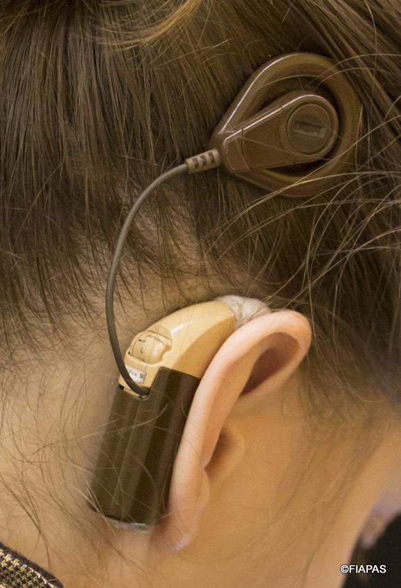 Imagen-de-una-joven-con-un-implante-coclear-c-FIAPAS.jpg